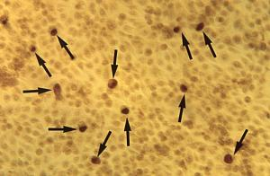 C. trachomatis inclusion bodies image courtesy of CDC